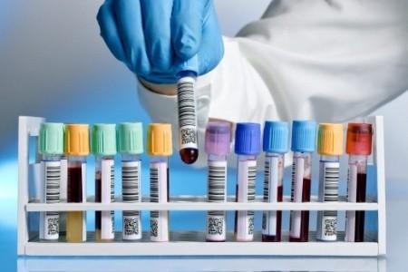 Da lunedì 26 ottobre le analisi di laboratorio prenotabili nelle farmacie di tutta la Romagna